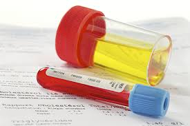 Sang dans les urines : causes et traitements